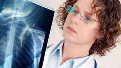 Симптоми і лікування запалення легенів
