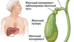 Правильне харчування і дієти при каменях в жовчному міхурі