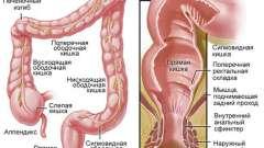 Причини болю в прямій кишці