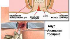 Причини і способи лікування тріщин прямої кишки
