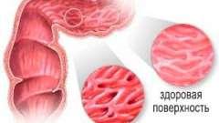 Яким має бути лікування катарального коліту кишечника?