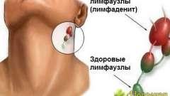 Застосування народних засобів в лікуванні лімфаденіту