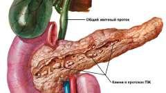 Ознаки та симптоми панкреатиту у жінок
