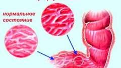 Ознаки розвитку туберкульозу кишечника
