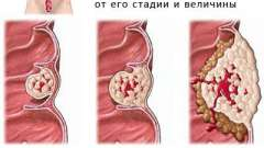 Лікування та прогноз аденокарциноми сигмовидної кишки
