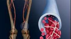 Прояви і лікування тромбозу глибоких вен
