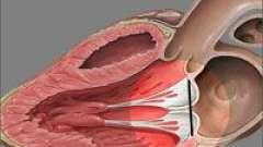 Пролапс мітрального клапана (пмк) першого ступеня