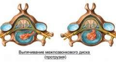 Протрузія міжхребцевого диска