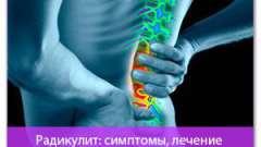 Радикуліт: симптоми, лікування (поради досвідченого)