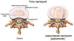 Різновиди протрузии попереково-крижового відділу хребта. Симптоми і лікування.