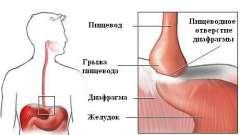 Розвиток і лікування грижі стравоходу