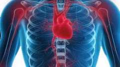 Ревматизм і ревмокардит: ознаки, серцеві прояви, діагностика, терапія, попередження