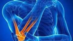 Ревматоїдний артрит. Лікування народними засобами