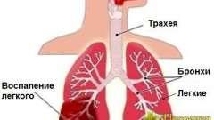 Ризик виникнення запалення легенів у дорослих і дітей