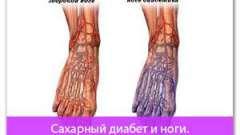Цукровий діабет і ноги. Поради діабетикам