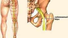 Сідничний нерв (ішіас)