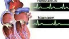 Серцева брадикардія: що за хвороба і чим вона небезпечна?