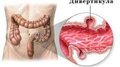 Симптоми дивертикулярной хвороби товстої кишки