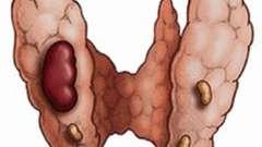 Симптоми і лікування аденоми щитовидної залози