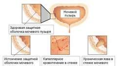 Симптоми і лікування циститу у жінок будь-якого віку
