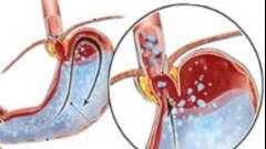 Симптоми і лікування гастриту з підвищеною кислотністю