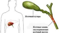 Симптоми і лікування холециститу