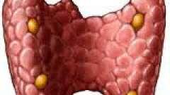 Симптоми і лікування вузлів щитоподібної залози