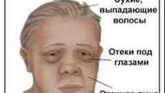 Симптоми і причини мікседеми щитовидної залози