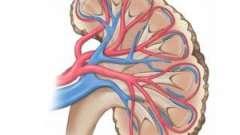 Синдром гудпасчера: причини, ознаки, діагностика, терапія