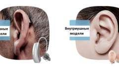 Слуховий апарат: як правильно вибрати