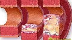 Способи чищення судин від холестерину