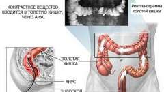 Навіщо роблять ирригоскопию кишечника?