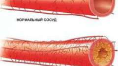 Стенозуючий атеросклероз судин
