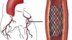 Стентування судин: показання, операція, реабілітація