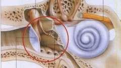 Будова і захворювання середнього вуха