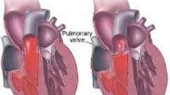 Звуження клапана легеневої артерії