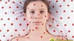 Висип у вигляді червоних крапок - народне лікування