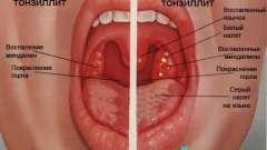 Тонзиліт на фото і його симптоматика