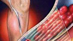 Тромбоз глибоких вен ніг і його лікування