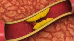 Тромбоз судин верхніх кінцівок