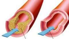 Рівень холестерину в крові
