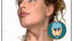 Збільшення щитовидки - благо чи проблема? Все про зобі щж