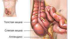 Види операцій з видалення апендициту