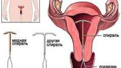 Вплив вмс на менструацію у жінок 18