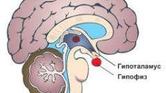 Можливі наслідки мікроаденоми гіпофіза