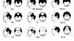 Випадання волосся (облисіння, алопеція)
