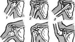 Вивихи плечового суглоба