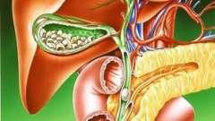 Жовчнокам`яна хвороба (холелітіаз)