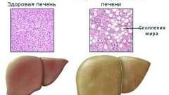 Жирова дистрофія печінки